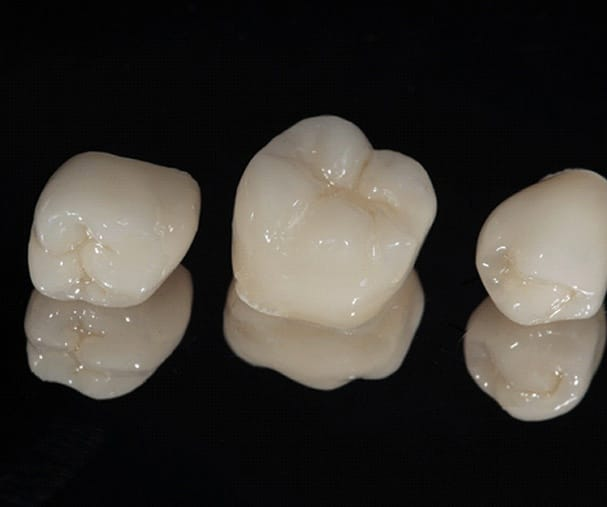 porcelain dental crowns sitting next to each other